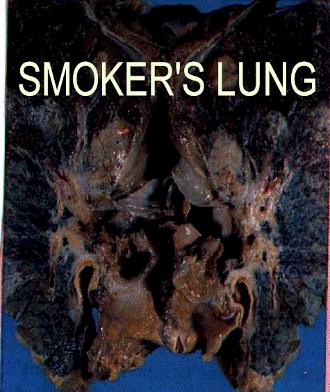 Cause and Effect essay: Smoking | smjang